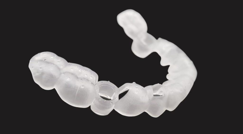 Dentaler 3D-Druck