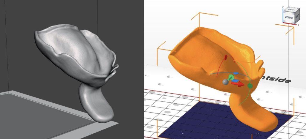 Dentale 3D-Druck