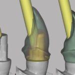 Kunz_Implantatprothetik